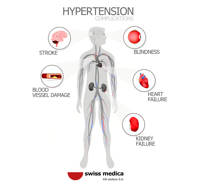 Arterial Hypertension: Symptoms, Types, Consequences
